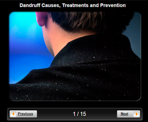 Dandruff (Seborrhea) Pictures Slideshow: Causes, Treatments and Prevention
