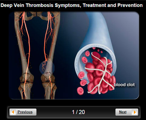 Deep Vein Thrombosis (DVT) Pictures Slideshow: Symptoms, Treatment & Prevention