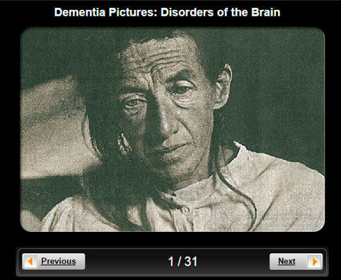 Dementia Pictures Slideshow: Disorders of the Brain