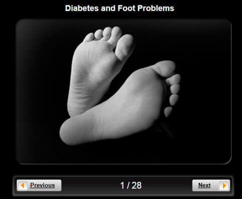 Diabetes and Foot Problems Pictures Slideshow