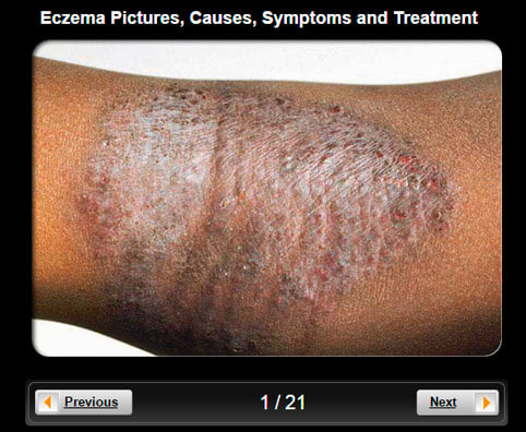 Eczema (Atopic Dermatitis) Pictures Slideshow: Causes, Symptoms and Treatment