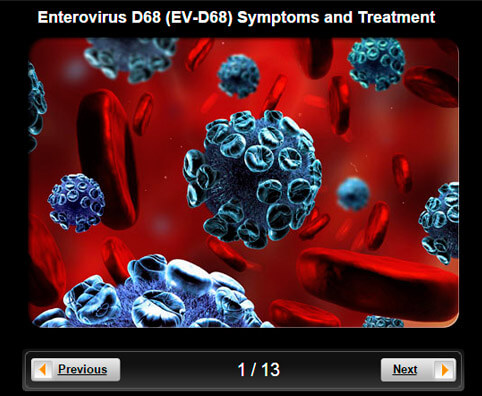 Nonpolio Enterovirus Infection Get The Facts On Evd68. Auto Loan Rates Pittsburgh Acs College Loans. Social Security Montgomery Al. Professional Employer Resources. Chamberlain University Student Portal. Texas Christian School Cna Classes Lincoln Ne. Can I Qualify For An Fha Loan. Ideas For Trade Show Booths Cash For Wheels. Becoming A Certified Wedding Planner