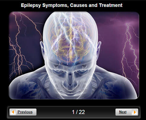 Epilepsy Pictures Slideshow: Symptoms, Causes and Treatment