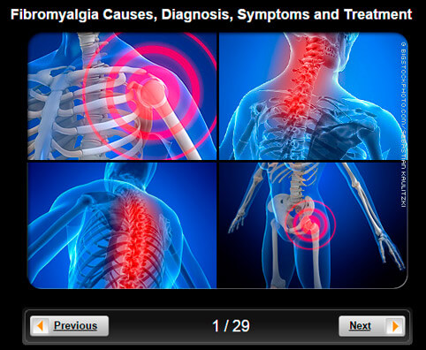 Fibromyalgia Pictures Slideshow: Photos of Causes, Diagnosis, Symptoms & Treatment