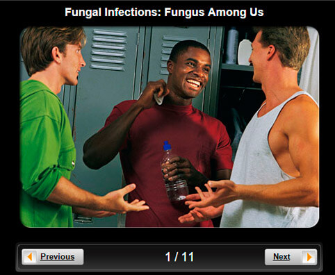 Fungal Infections Pictures Slideshow: Fungus Among Us