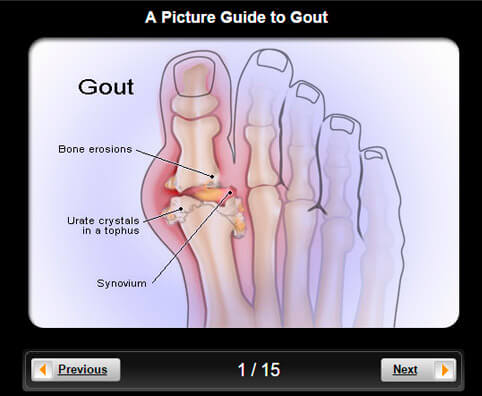 Gout Pictures Slideshow: Watch & Learn About Gout