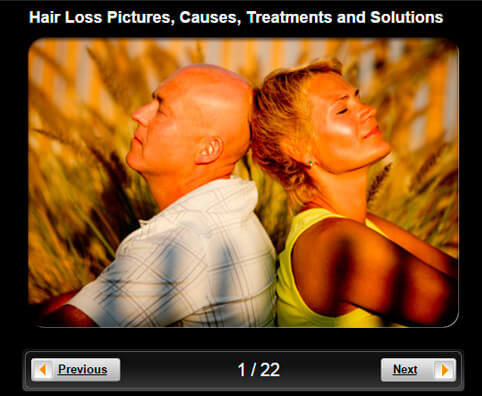 Hair Loss Pictures Slideshow: Causes, Treatments and Solutions for Men & Women