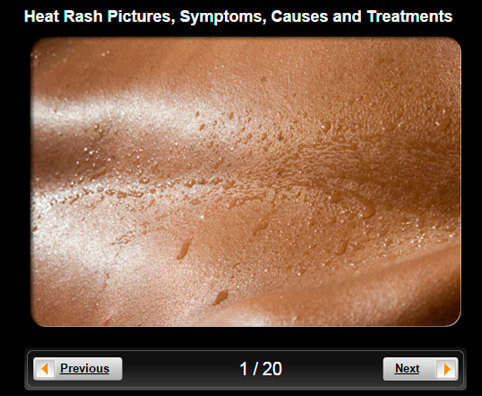 Heat Rash Pictures Slideshow: Symptoms, Causes & Treatments