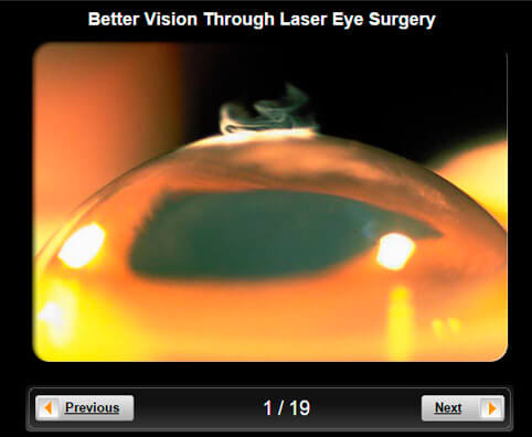 Laser Eye Surgery Pictures Slideshow: Better Vision Through Surgery (LASIK, PRK, LASEK & More)