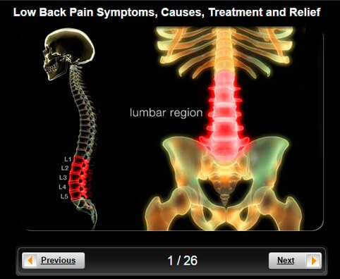 Low Back Pain Pictures Slideshow: Symptoms, Causes, Treatment and Relief