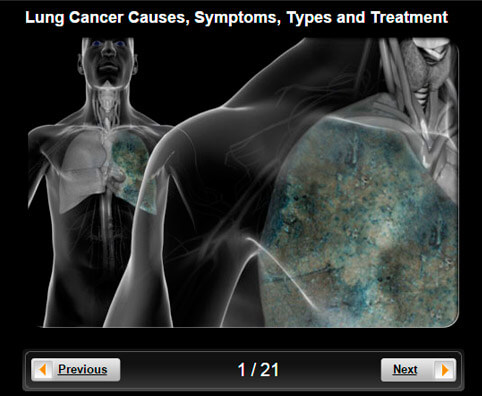 Lung Cancer Pictures Slideshow: Causes, Symptoms, Types and Treatment