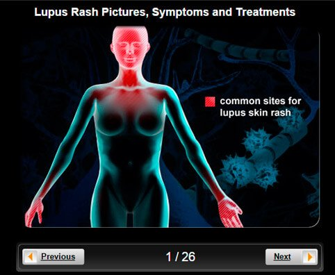 Lupus Pictures Slideshow: Causes, Symptoms, Diagnosis, and Treatments