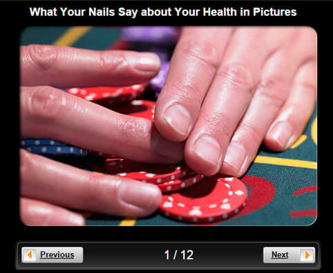 Nail Health Pictures Slideshow: What Your Nails Say about Your Health