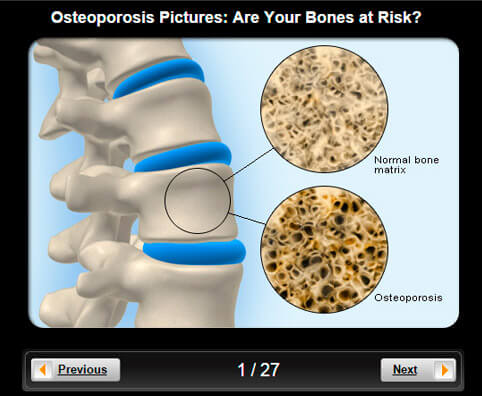 Osteoporosis Pictures Slideshow: Are Your Bones at Risk?
