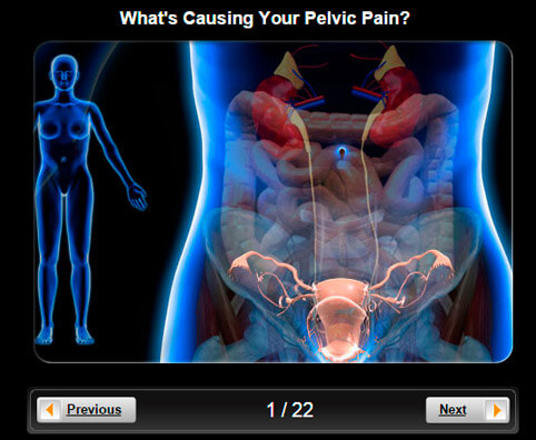 Pelvic Pain Pictures Slideshow: What's Causing Your Pelvic Pain?
