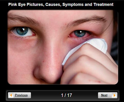 Pink Eye (Conjunctivitis) Pictures Slideshow: Causes, Symptoms, & Treatments