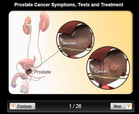 Prostate Cancer Pictures Slideshow: Visual Guidelines to Symptoms, Tests and Treatment