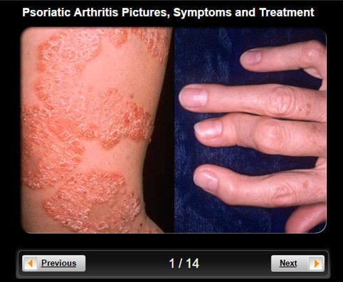 Most people develop psoriasis first and are subsequently diagnosed with psoriatic arthritis 3