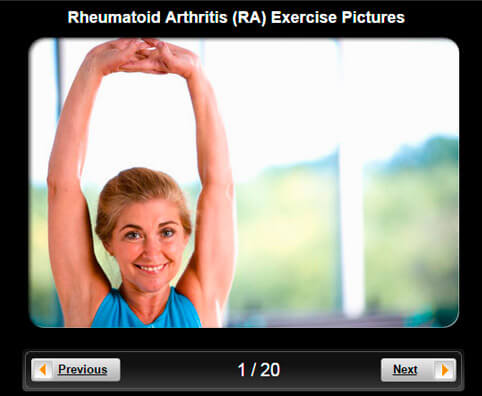 Rheumatoid Arthritis (RA) Pictures Slideshow: Joint-Friendly Exercises & Fitness Routines