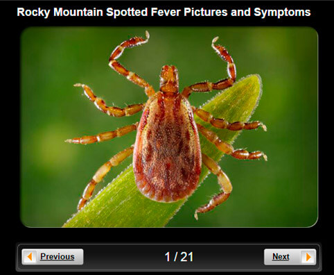 Rocky Mountain Spotted Fever Pictures Slideshow: Causes, Symptoms and Treatment
