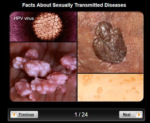 STDs Pictures Slideshow: Facts About Sexually Transmitted Diseases