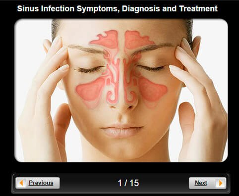 Sinusitis Pictures Slideshow: Symptoms, Diagnosis, Treatment