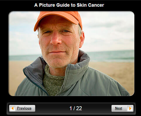 Skin Cancer Pictures Slideshow