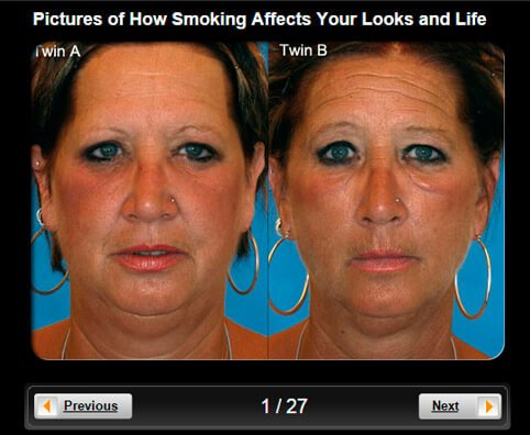 Smoking Effects Pictures Slideshow: How Smoking Affects Your Looks and Life