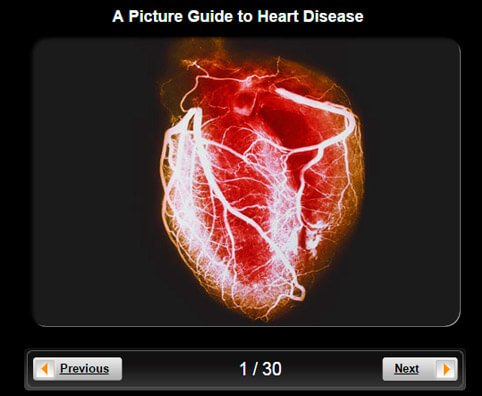 Heart Disease Pictures Slideshow: A Visual Guide to Heart Disease
