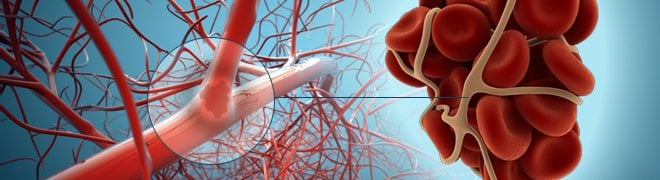 An illustration shows an example of a blood clot in the artery.