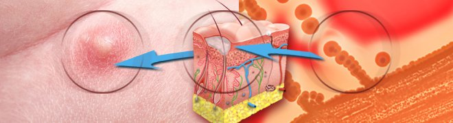 Picture: An illustration shows the formation of boils, a skin infection that starts in a hair follicle or oil gland.