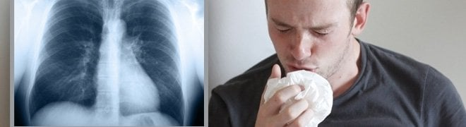 Picture: A man with chronic cough next to an X-ray of his chest.