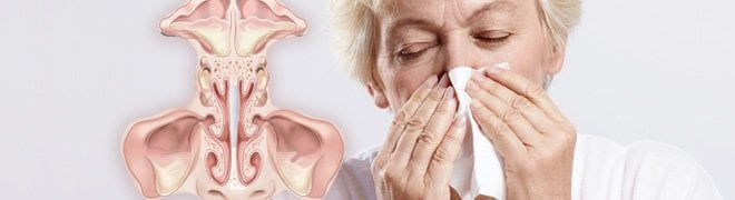 Picture: A woman with chronic rhinitis holds a tissue to her nose along with an illustration of the sinus cavity. 