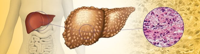 Picture: Cirrhosis of the liver is a condition where scar tissue replaces the liver's healthy tissue usually due to alcohol abuse or chronic hepatitis.