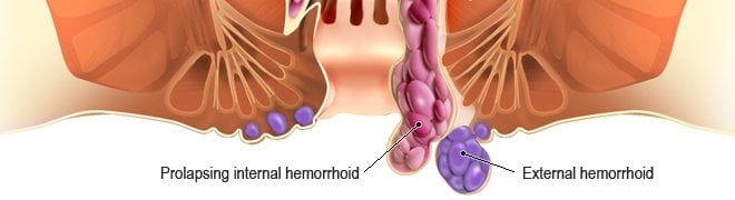 Picture: Hemorrhoids can be described as masses or clumps of tissue within the anal canal that contain blood vessels as seen in this illustration.