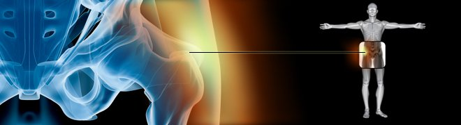 An illustration of hip bursitis.