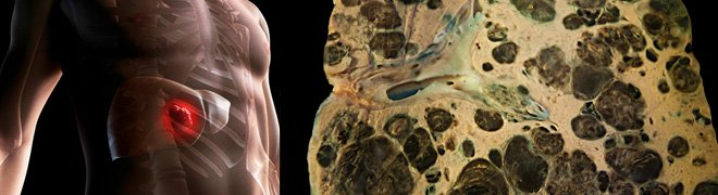 Picture: An illustration of liver cancer in the body and an image scan showing metastases of melanoma in liver.