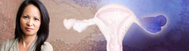 A woman and an illustration of ovarian cancer affecting the uterus, fallopian tubes and ovaries.
