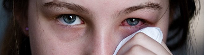 Picture: Most cases of pink eye are caused by viral or bacterial infections and cause irritation, redness and swollen eyes. 