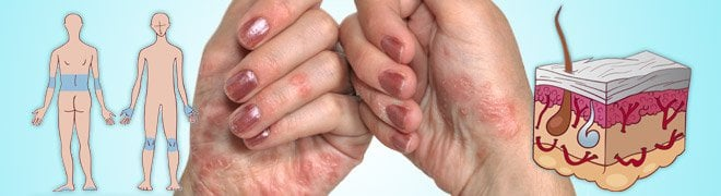 A female with psoriasis on her hands. Illustrations of where psoriasis can occur on the body and a psoriasis skin infection. 