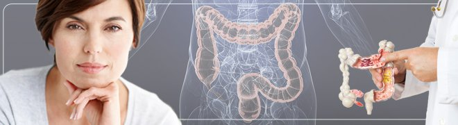A middle-aged woman, illustration of the large intesting (colon), and a doctor shows ulcerative colitis in a plastic model of the large intestine.
