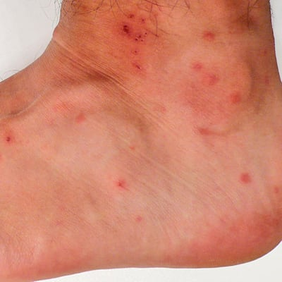 Ankle Bites Pictures Photos