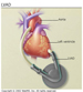 Thumbnail ventricular assist device picture