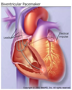 Biventricular Pacemaker Heart Illustration