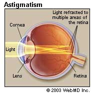 astigmatism 