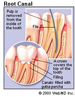 Thumbnail root canal picture