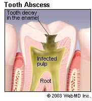 Picture of an abscessed tooth.