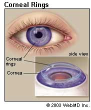 Cornea (Eyes): Conditions, Symptoms, and Treatments Information on ...