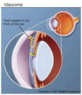 Picture of Glaucoma of the Eye