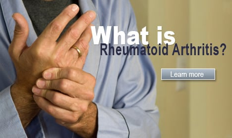 Blocking one receptor on cells could halt rheumatoid arThritis